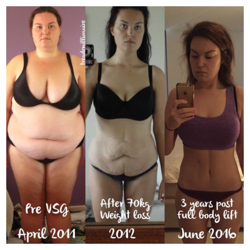 how to lose excess skin after weight loss surgery