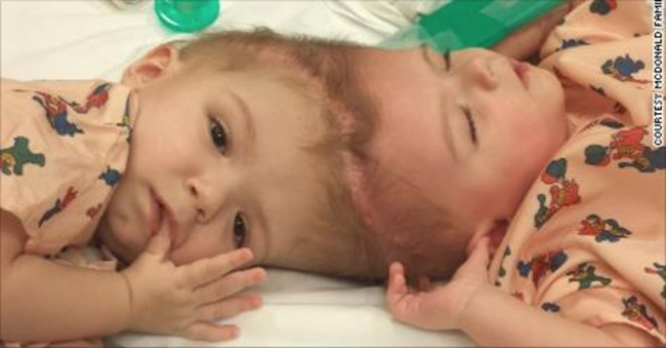 Formerly Conjoined Twins Go Home