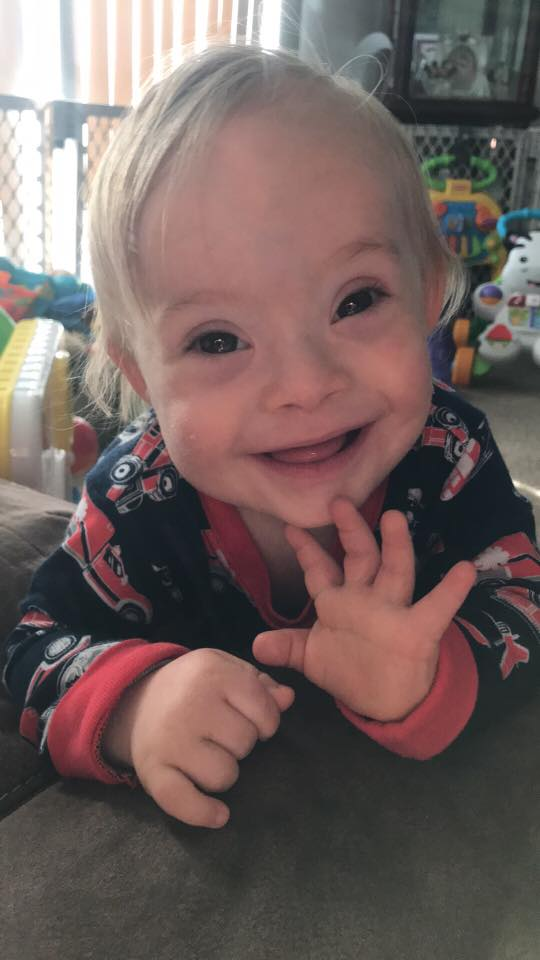 Down syndrome Gerber baby