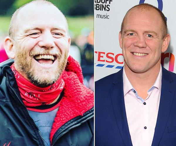 Mike Tindall New Nose NTL
