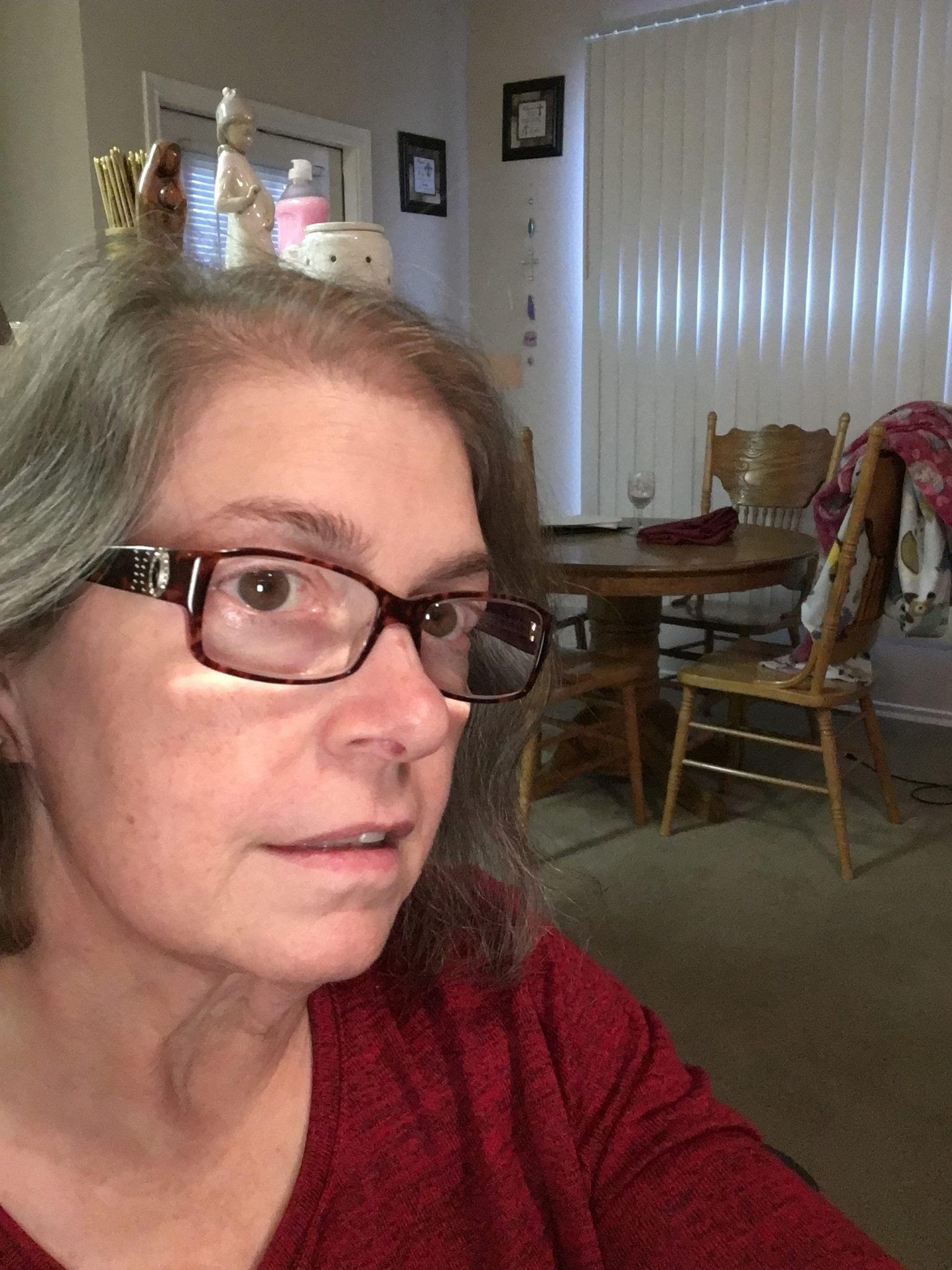 Diana Bunch My 600-lb Life 3