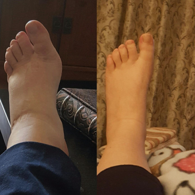 shot of foot before and after wearing compression socks