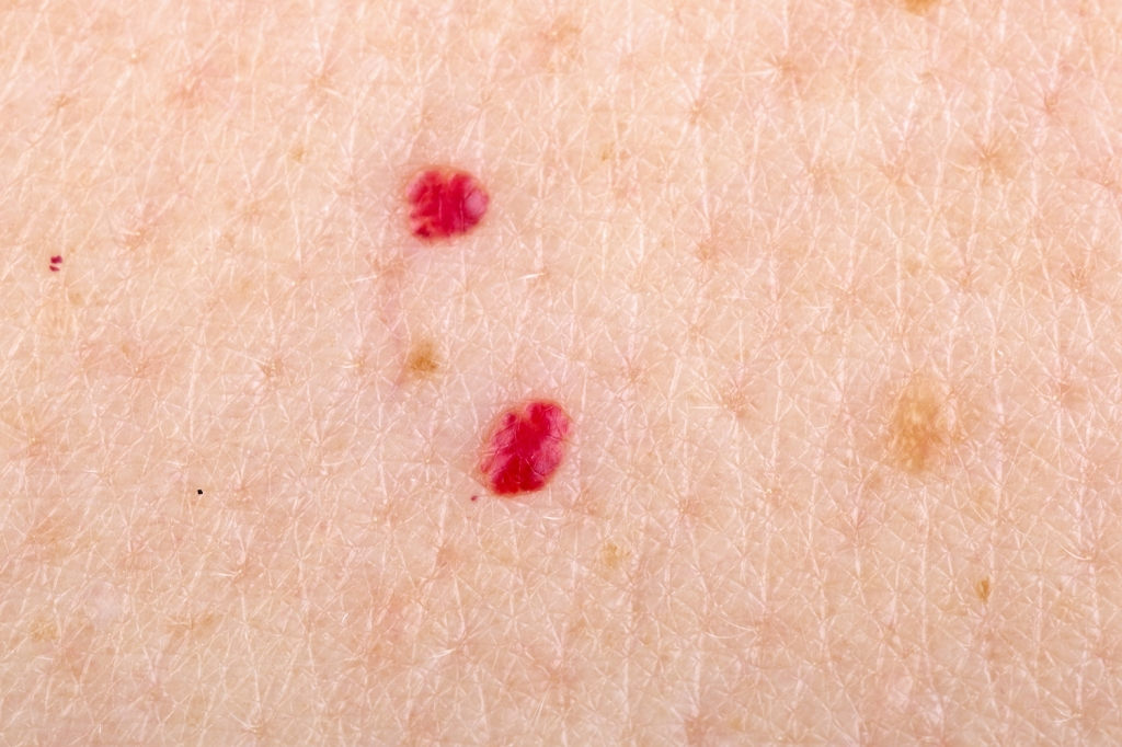 Cherry angioma on human skin