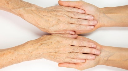 Woman with age spots on her hands and arms