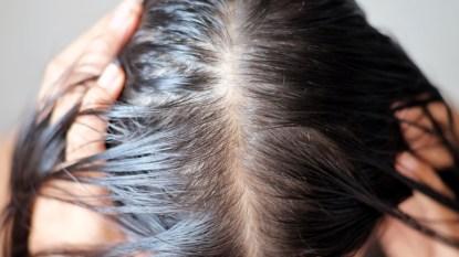 stop-hair-loss-high-fat-diet