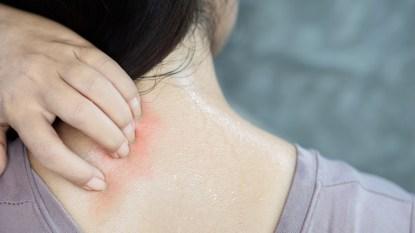 glycerin-skincare-for-psoriasis