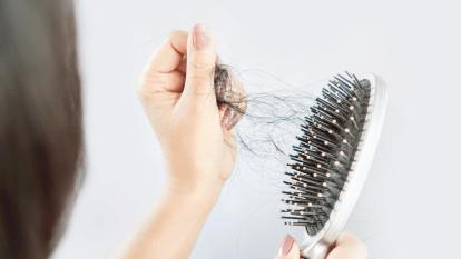 reverse-hair-loss-natural-remedies
