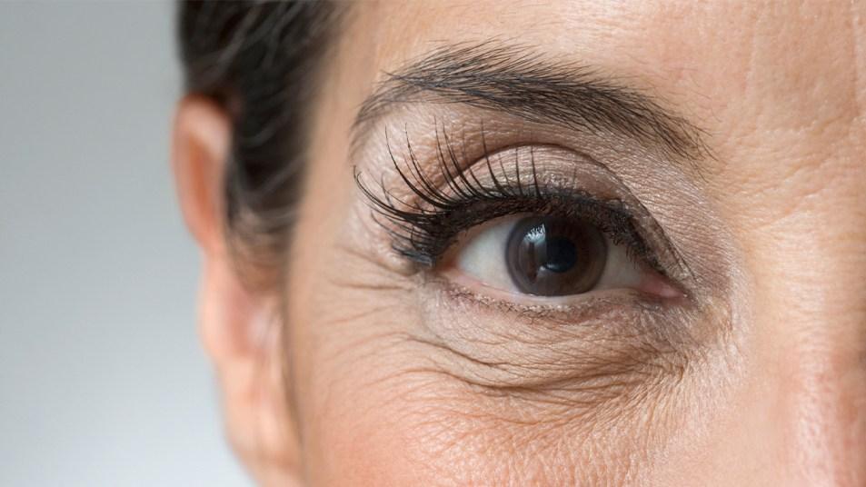 Eye health dementia thumbnail