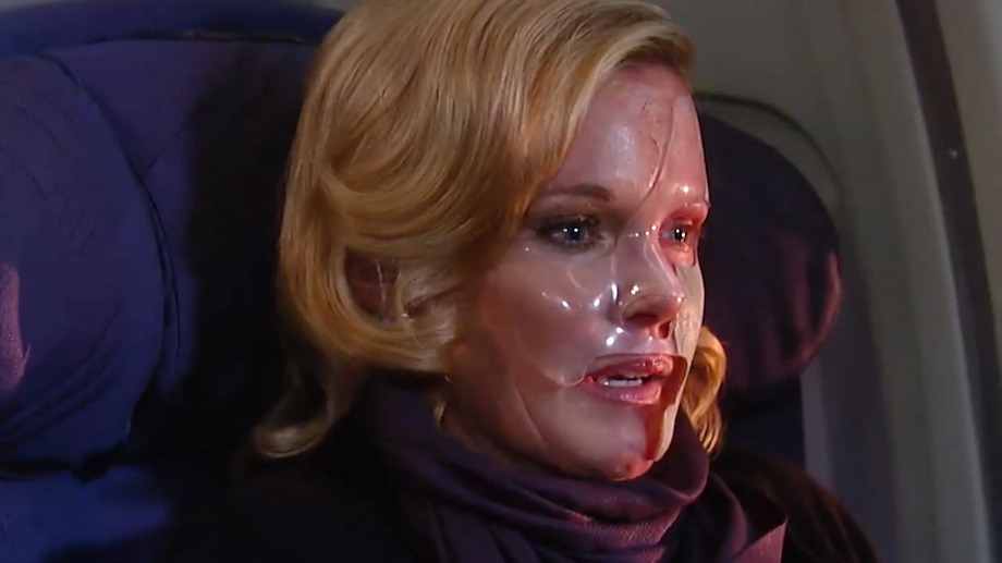 GH Ava Burned - ABC